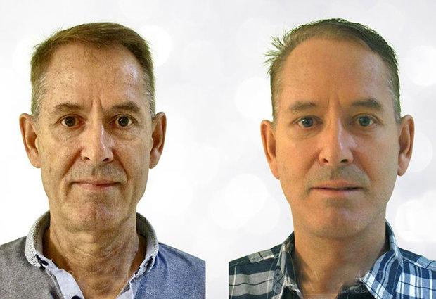 توصیه های برای پیشگیری از پیری پوست